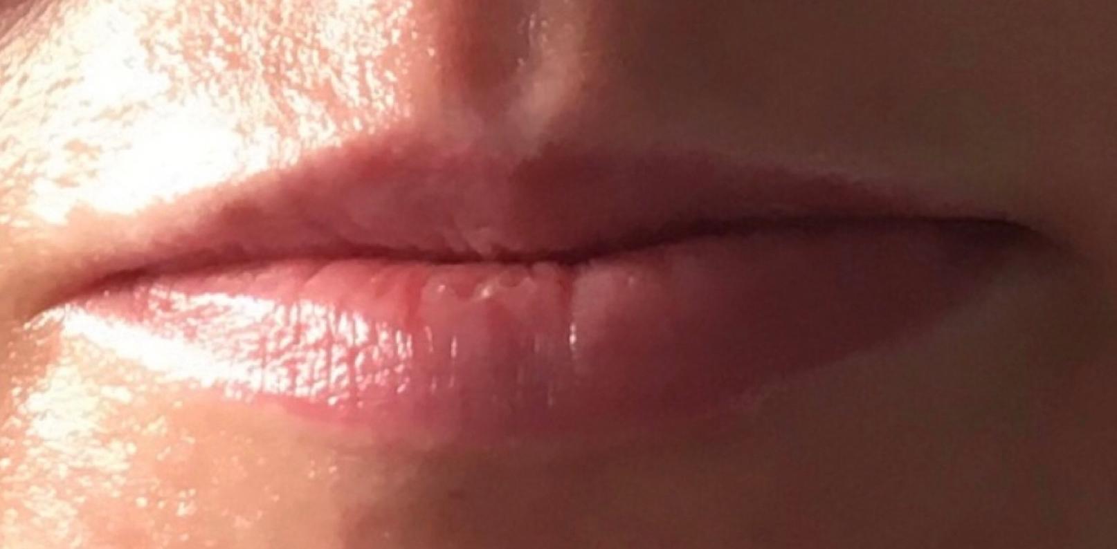 Lippen Vorher und Nachher